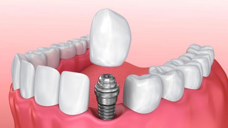 implant-mersin-beyazinci