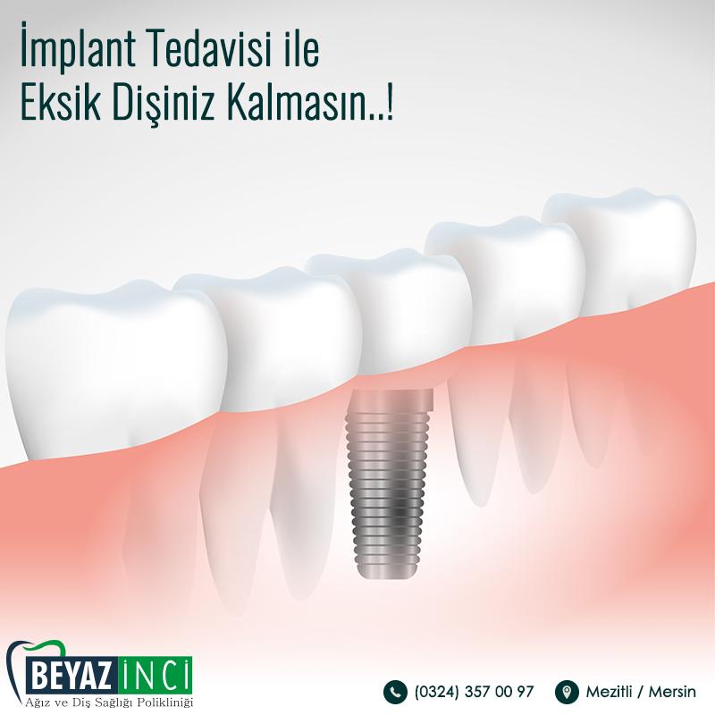 implant-tedavisi-ile-eksik-disiniz-kalmasin