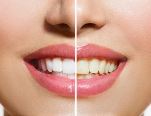 Mersin Diş Tedavi ve Çözümleri