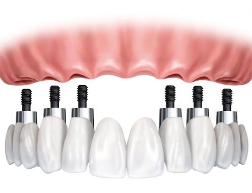 Mersin'de implant tedavisi – Dt. Dr. Bekir Talat Ekiz