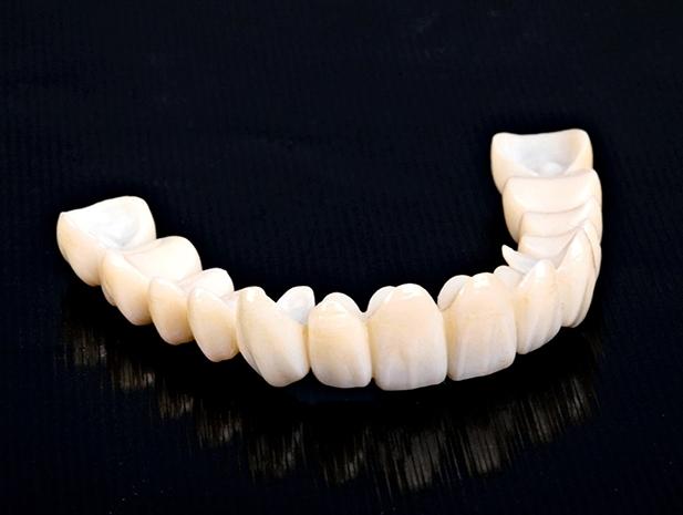 Zirkonyum Diş Kaplamanın Özellikleri