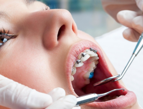 Diş teli tedavisi nasıl yapılır? Tedavi sırasında nelere dikkat edilmeli?