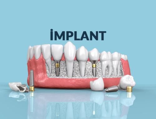 İmplant Nedir? Diş Tedavisinde İmplant Yöntemi