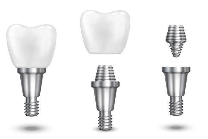 mersin implant