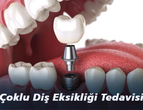 Çoklu Diş Eksikliği Tedavisi